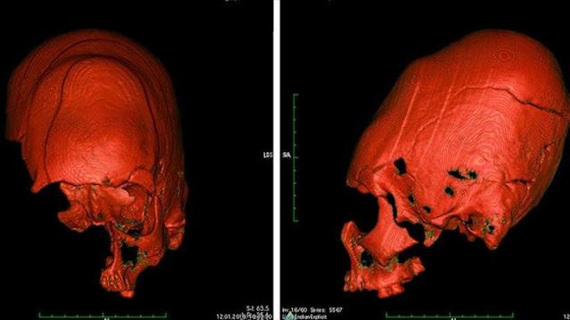 Revelan misterio sobre ancestrales cráneos de aspecto alienígena