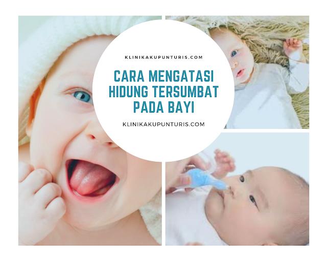 Cara Meredakan Hidung Tersumbat Pada Bayi Secara Alami