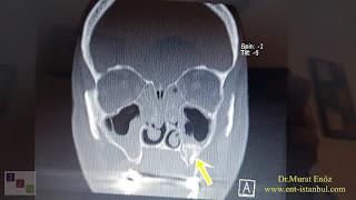 Paranasal Sinus Tumor,Maxillary Sinus Ameloblastoma, Mxillary Sinus Tumor, Sinus Pain