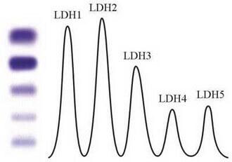 LDH izoenzimleri