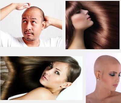 Cara Menumbuhkan Rambut Botak Rontok Dengan Cepat Dan Alami