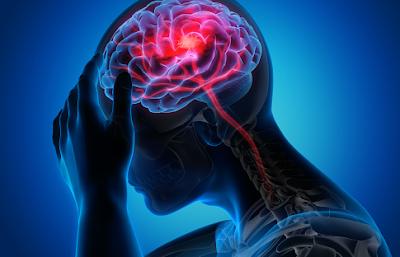 Penyakit kejang adalah sebuah gangguan yang ditemui pada tubuh manusia, gangguan tersebut terjadi pada otak manusia yang mengalirkan sinyal listrrik melalui saraf ke tubuh. Kondisi ini akan sangat mempengaruhi keadaan aktivitas keseharian dari penderitanya dan tentunnya akan terganggu dalam melakukan sebuah aktivitas.  Hal ini bisa terjadi dikarenakan oleh beberapa faktor yang diantaranya akan di bahasa dalam artikel ini, untuk mengetahui lebih lanjut dalam membaca bahasan penyakit kejang pada tubuh manusia, silahkan di simak dan baca dengan yang telah tersaji di bawah ini.    Penyakit Kejang Pada Tubuh Manusia  Kejang merupakan sebuah gangguan pada otak manusia sehingga mempengaruhi keadaan dari tubuh manusia. Hal ini akan menimbulkan efek kejang-kejang pada manusia akibat dari adanya gangguan sinyal listrik yang disampaikan otak melalui saraf menuju otot. Hal ini bisa terjadi oleh karena beberapa faktor yang salah satunya adalah akibat cedera atau luka di kepala.  Maka dari itu penting untuk mengenali dan memahami kondisi ini, agar di dalam keseharian dalam melakukan kegiatan dalam menerapkan pola hidup sehat dan selalu berhati-hati. Untuk menegtahui lebih lanjut dalam membaca bahasan dari penyakit ini, silahkan di simak dan ikuti dengan sebagai berikut ini :  1. Pengertin Kejang  Semua gerakan kita dikendalikan oleh otak yang mengirim sinyal-sinyal listrik melalui saraf ke otot. Jika sinyal dari otak mengalami gangguan atau terjadi keabnormalan, otot-otot tubuh dapat berkontraksi secara tidak terkendali. Itulah yang terjadi saat tubhu mengalami kejang.  2. Gejala Kejang  Tiap orang mengalami gejala kejang yang berbeda-beda. Perbedaan ini umumnya tergantung pada bagian otak yang mengalami gangguan. Beberapa gejala yang dapat muncul tiba-tiba meliputi : Kehilangan kesadaran untuk sesaat dan merasa bingung ketika sadar karena tidak ingat apa yang terjadi Perubahan gerakan bola mata Mengiler atau mulut berbusa Perubahan suasana hati, misalnya mendadak marah atau pani