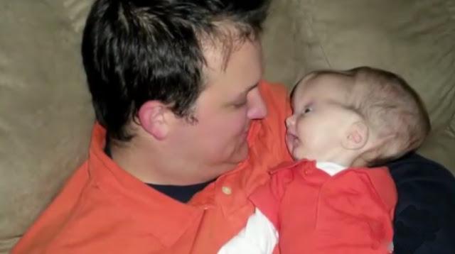 Когда Малыш Появился На Свет, Родители Замерли От Ужаса — Никто Не Давал Ему Ни Шанса!