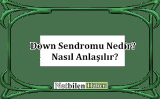 Down Sendromu Nasıl Anlaşılır
