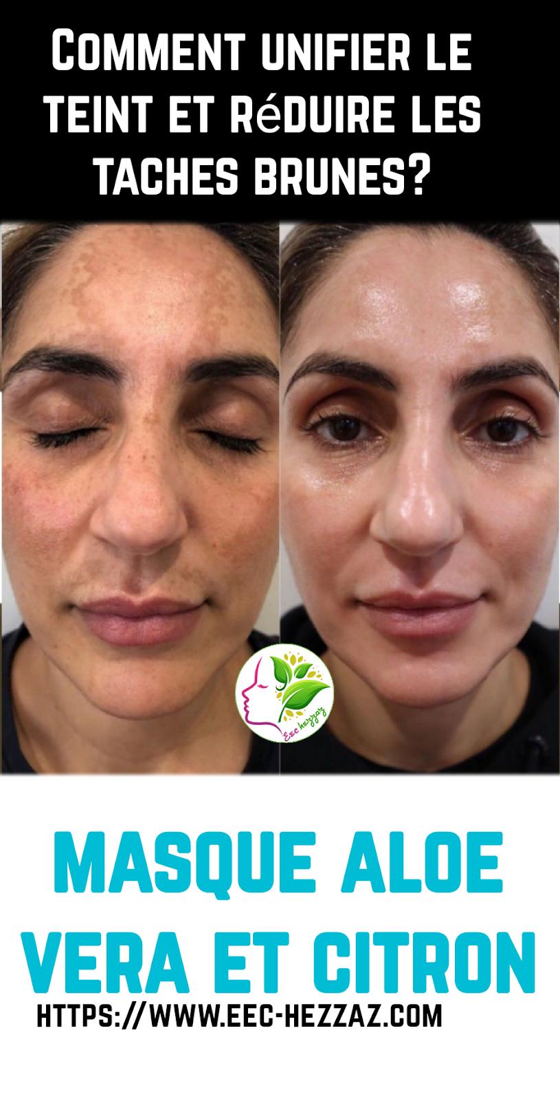 Comment unifier le teint et réduire les taches brunes? masque aloe vera et citron