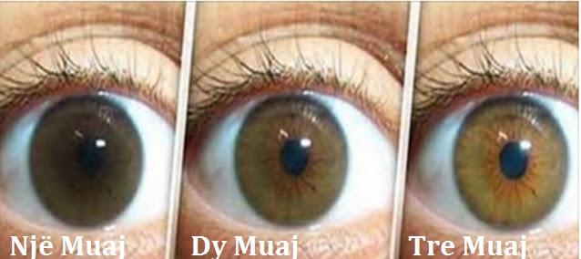 Receta natyrale për pastrimin e Syve dhe zhvillimin e shikimit brenda 3 muajsh