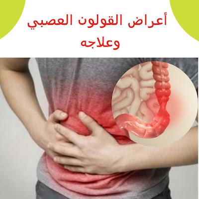 أعراض وأسباب القولون العصبي وعلاجه