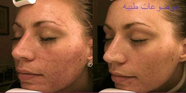 ما هى فوائد تقشير الوجه