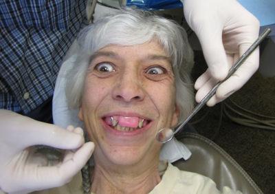 funny teeth fitting
