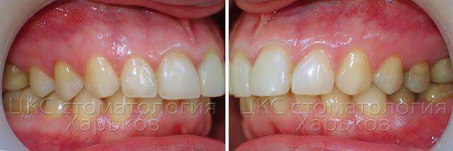 правильный прикус в боковых сегментах зубного ряда