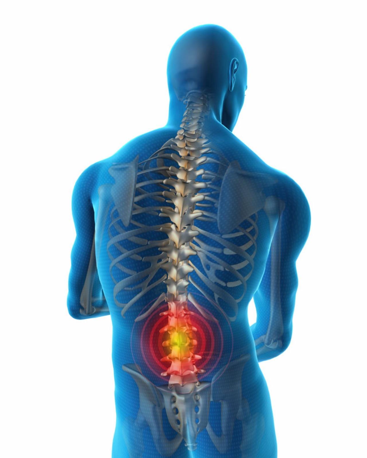 RADIOLOGIA MACARENA: Radiología del dolor lumbar