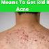 Top 5 Means To Get Rid Back Acne