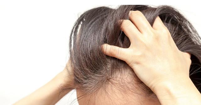 Cara Menghilangkan Kutu Rambut Alami