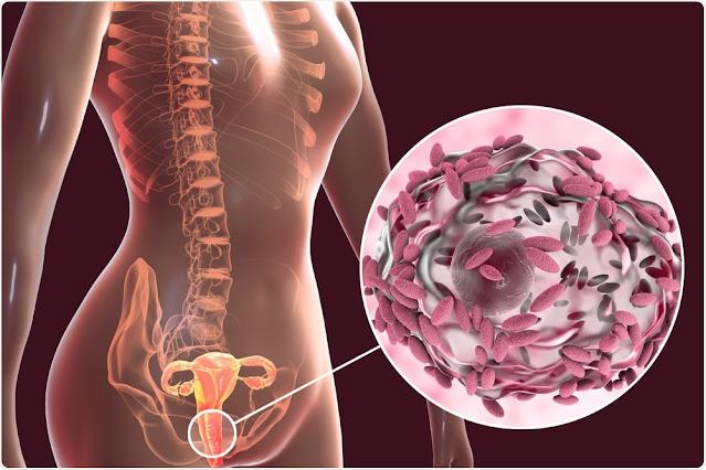 التهاب المهبل البكتيري (BV) هو عدوى تصيب المهبل. ينتج عن تغيير التوازن الطبيعي للبكتيريا المهبلية. عادة لا يسبب التهاب المهبل البكتيري أي مشاكل صحية أخرى. لكن يمكن أن يؤدي إلى مشاكل ، خاصة عندما تكونين حاملاً أو تحاولين الحمل.
