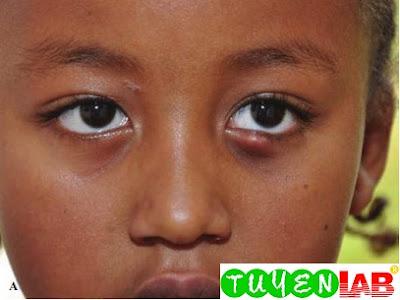 External hordeolum on the lower eyelid of a 5-yearold girl