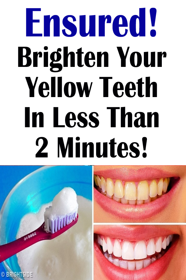 Ensured! Brighten Your Yellow Teeth In Less Than 2 Minutes!