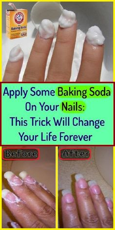 Apply Some Baking Soda On Your Nails: Trick This Will Change Your Life Forever