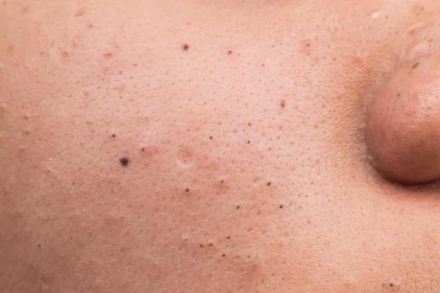 Acne blackheads