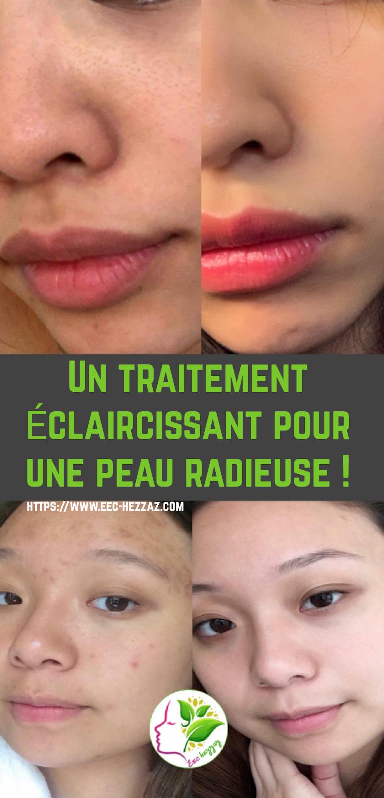 Un traitement éclaircissant pour une peau radieuse !