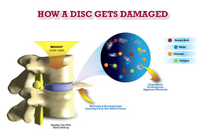 how a spinal disc gets damaged
