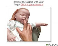 Choking in Infants - First Aid Guide