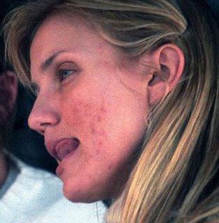 acne-en-mujeres-adultas