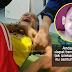 Bayi 8 Bulan Didera Pengasuh Sampai Lebam Mata & Bengkok Tulang Tangan