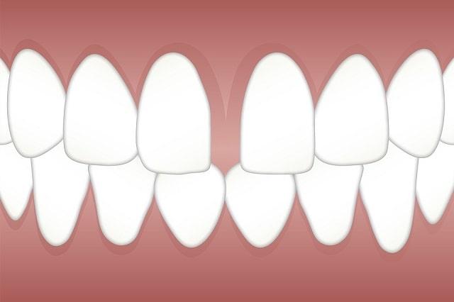 diastema gap teeth treatment