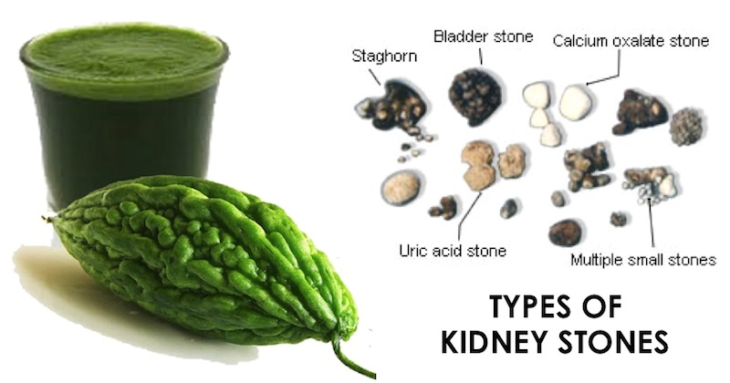 How To Drink Bittergourd Juice To Break Down Kidney Stones For Elimination