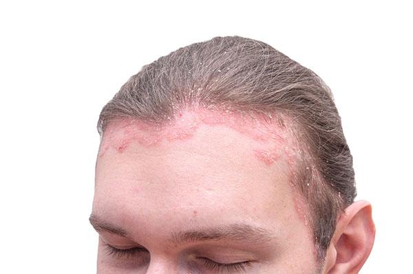 So sánh dầu gội phủ bạc tóc Komi Nhật Bản và thuốc nhuộm tóc