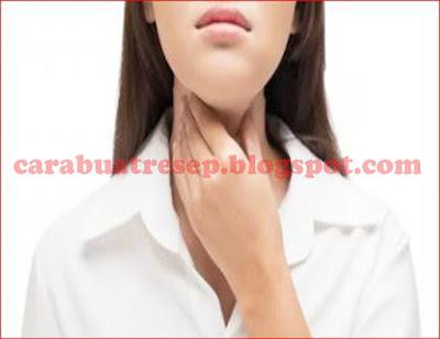 Foto Resep Obat Radang Tenggorokan Sakit (Faringitis)
