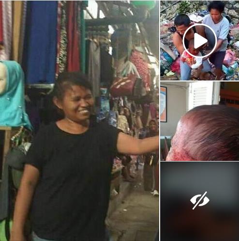 Wanita Gila Ini Bawa Lari Balita Lalu Memotong Kedua Telinga dan 1 Jari Tanganya