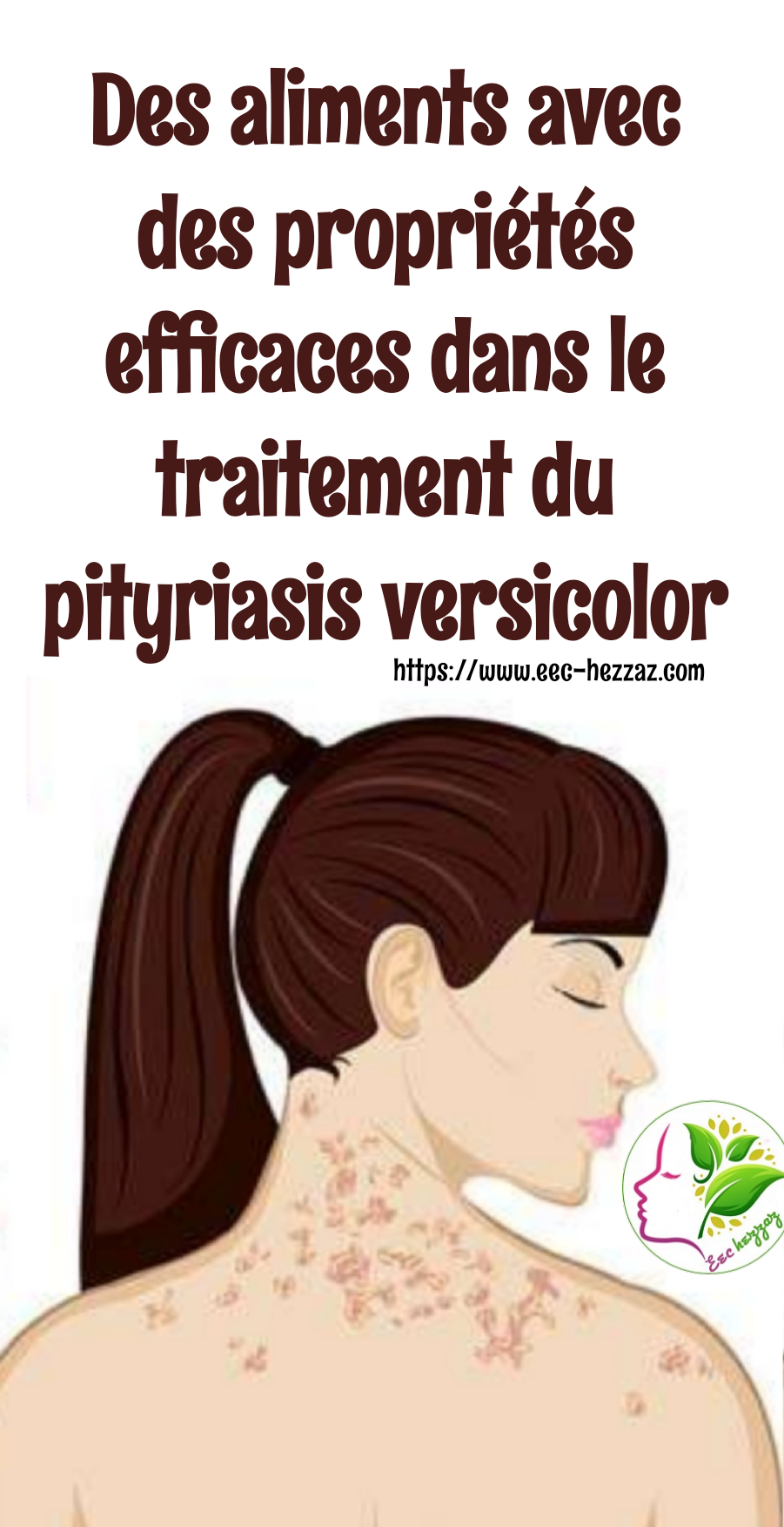 Des aliments avec des propriétés efficaces dans le traitement du pityriasis versicolor