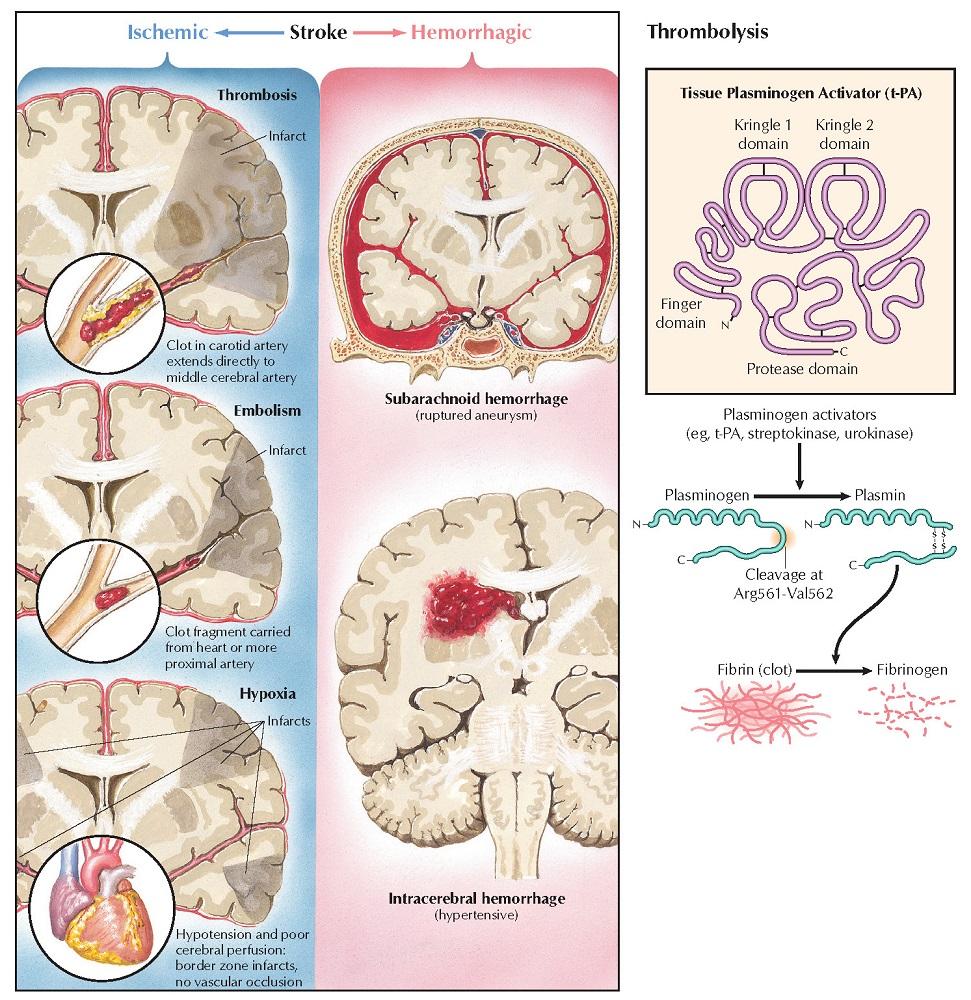 Stroke: Symptoms and Drug Treatment