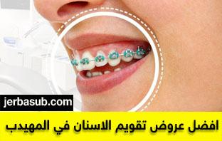 عروض المهيدب لتقويم الاسنان