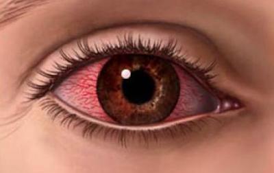 Ophthalmia,চোখ ওঠা