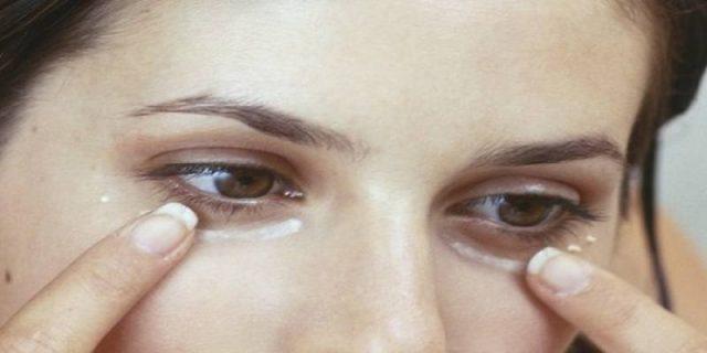 Las ojeras oscuras la cosmetología
