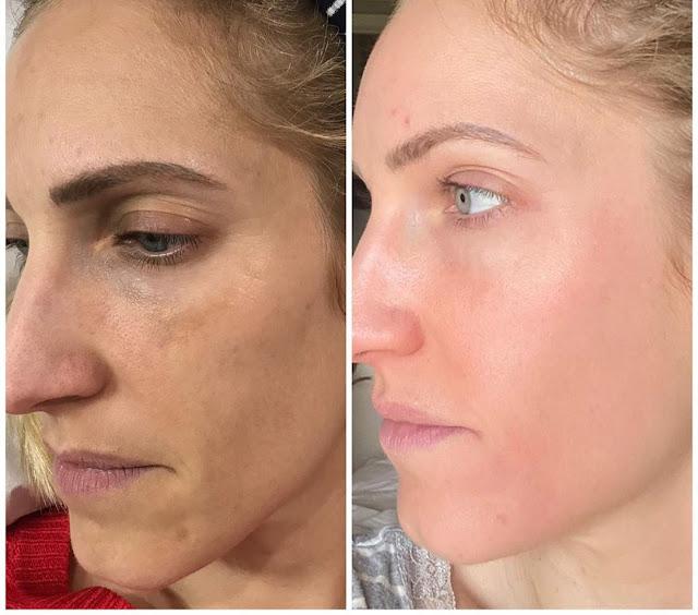 Les problèmes de peau qui touchent les femmes de 40 ans et comment les résoudre