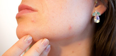 Prevent Pimples (Acne) Naturally at Home