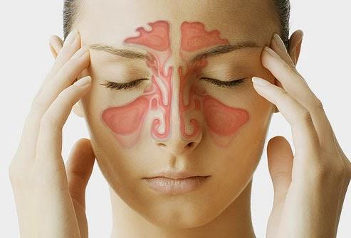 Penyakit Sinusitis : Penyebab, Gejala Dan Pengobatan Sinusitis