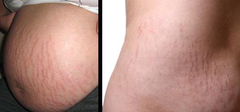 garis guratan kulit biasanya menjadi persoalan perempuan yang sering dianggap mengganggu penamp Cara Alami Hilangkan Stretch mark