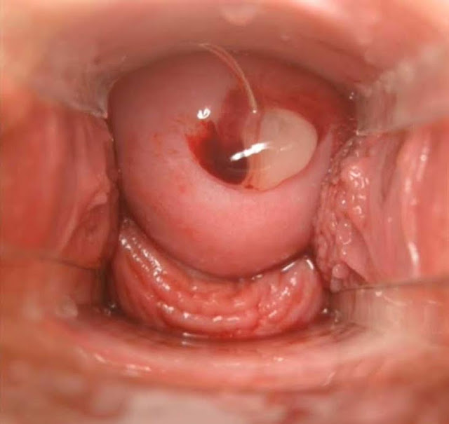 The sharp mentrual cramps in anal region