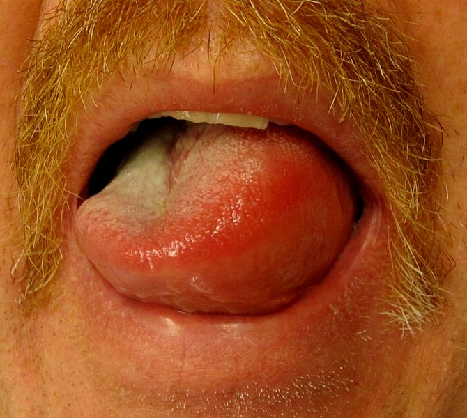 and latex allergies Angiodema