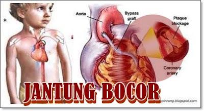 Pengobatan Tradisional Penyakit Jantung Bocor