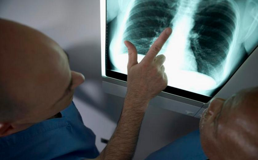Aggressive Lung Cancer Life Expectancy