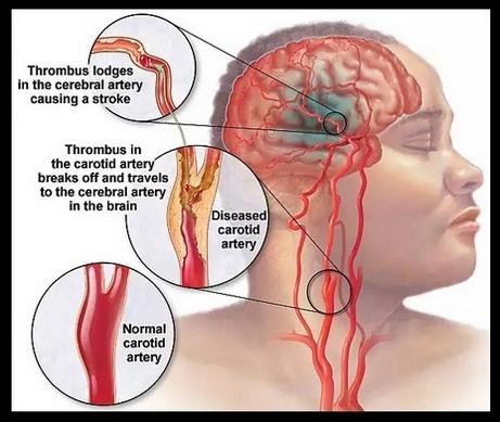 Pantangan & Proposal Makanan Bagi Penderita Stroke