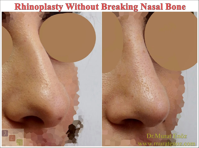 Rhinoplasty Without Breaking Nasal Bone - Rhinoplasty Without Breaking Nasal Bone -Female Nose Aesthetic Surgery - Nose Jobs For Women - Nose Reshaping for Women - Best Rhinoplasty For Women Istanbul - Female Rhinoplasty Istanbul - Nose Job Surgery for Women - Women's Rhinoplasty - Nose Aesthetic Surgery For Women - Female Rhinoplasty Surgery in Istanbul - Female Rhinoplasty Surgery in Turkey