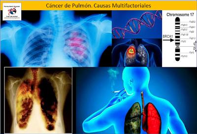 El-cancer-de-pulmon-puede-tener-origen-en-causas-geneticas-o-ambientales