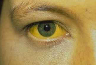 hepatit b sarılık