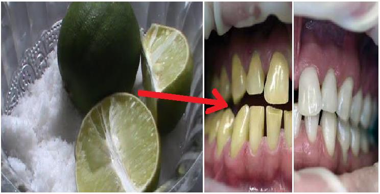 Cara Memutihkan Gigi Secara Alami Dengan Jeruk Nipis Dan Garam